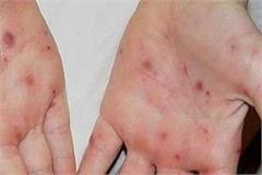 scrub typhus can cause death