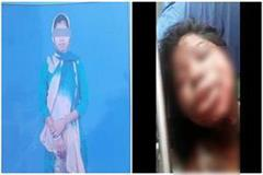 up rape victim burnt herself alive due to fear and slander painful death