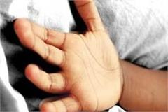 death of child girl due to hot water