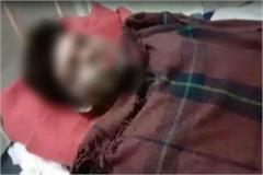 youth burnt alive mp s sagar dies safdarjung hospital during treatment