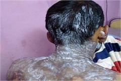 girl threw acid on lover condition critical