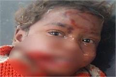 stray dog jaw of 4 year old girl sleeping in a slum