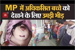 birth of undeveloped child in chhatarpur