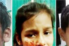 mad dog bitten more than 30 people in pathankot