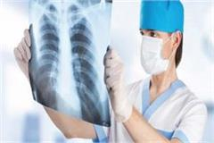 covid 19 x rays have big spots on lungs but the patient has no problem