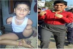 panipat resident child will got new hand and feet punjab haryana high court