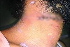 moradabad dairy businessman s neck cut due to chinese mange