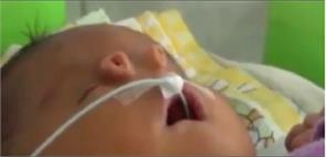 on the face of this child is born with two tubes