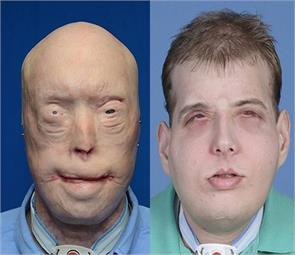 firefighter gets most extensive face transplant
