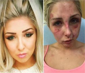 girlfriend was brutally beaten by boyfriend