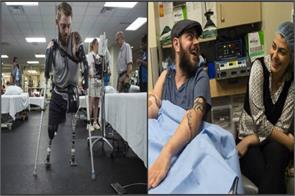 retired us marine receives double arm transplant