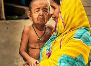 Bangladesh Ba Yjid Hussein illness