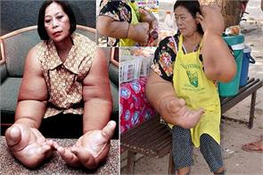 59 year old duangjay samaksamam have the biggest hands in the world