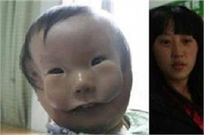 chinese boy born with two faces