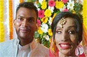 acid attack victim got married with her lover