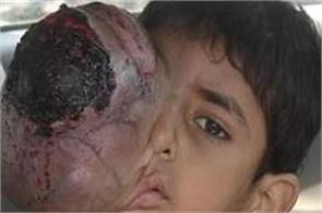 horrifying images pakistani boys eye tumour