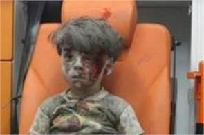omran daqneesh from aleppo whose photo had gone viral is doing well