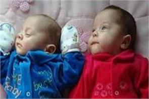 123 days after the death of woman gave birth to twins