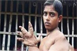 bangladeshi teen with ever growing hand and claw like fingers