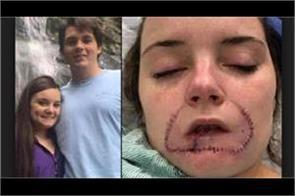 us student s lip bitten off by thug ex boyfriend