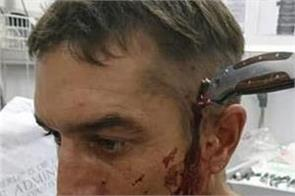 south african cyclist with knife buried in his head calmly asks for help