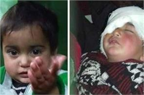 19 month hiba injured from pallet gun