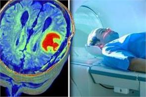 dementia mri scan can be applied to the risk address