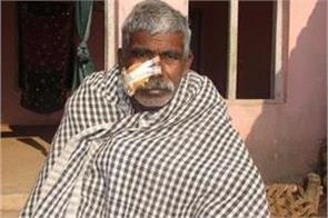 day winters leopard attacked farmer  injured