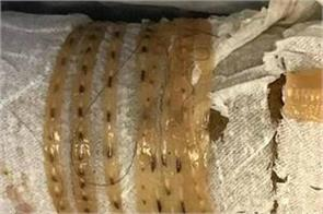 5 footlong tapeworm slithered out from body of a man