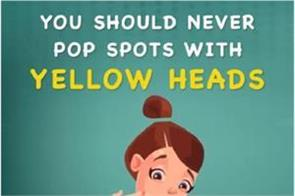 you should never pop spots with yellow heads