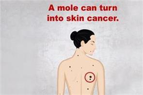 a mole that can change skin cancer