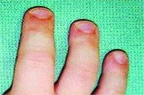 semi developed thumb developed by doctors