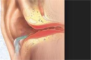 england doctor removed foreign object from ear canal of patient