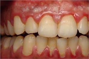 treatment of teeth in the country cheaper upto 900