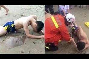 man s genital gets stung by stingray while swimming in china