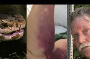 man bitten while taking selfie with snake