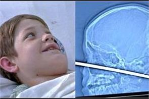 miraculous boy survives after meat skewer pierces skull