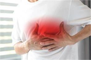 cardiogenic shock patients have lower mortality than before