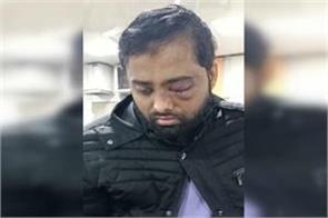 waqf board will give rs 5 lakh and job to student who loses eye in jamia