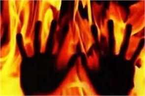 muzaffarpur if unable to rape then set on fire 80 percent of the girl burnt