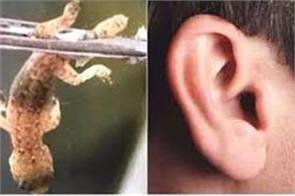 squirming lizard removed from man s ear in china