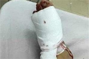 australia husband mistakenly beats woman wearing snake stockings