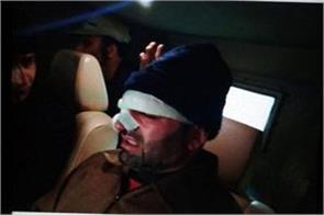 corporators broke the nose of deputy mayor srinagar