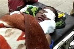 battery cracked innocent serious injured in child hand playing video game