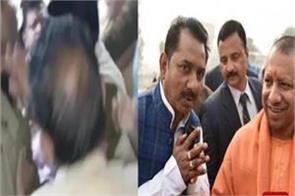 bjp leader accompany supporters to hospital concussion