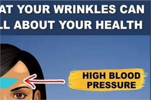 what your wrinkles can tell about your health