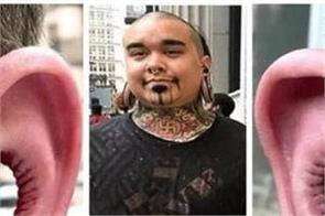man gets inside of ear removed in bizarre new body modification