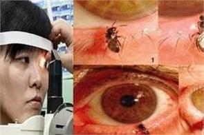 doctors find four live bees feasting on tears inside woman s eye