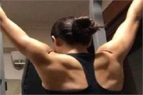 woman s rare condition causes her to sweat blood