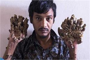bangladesh s  tree man  wants to cut pain to get relief from pain